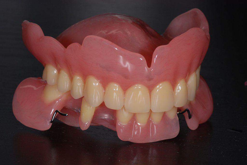 irtoprotetiikka hammaslaboratoriossa