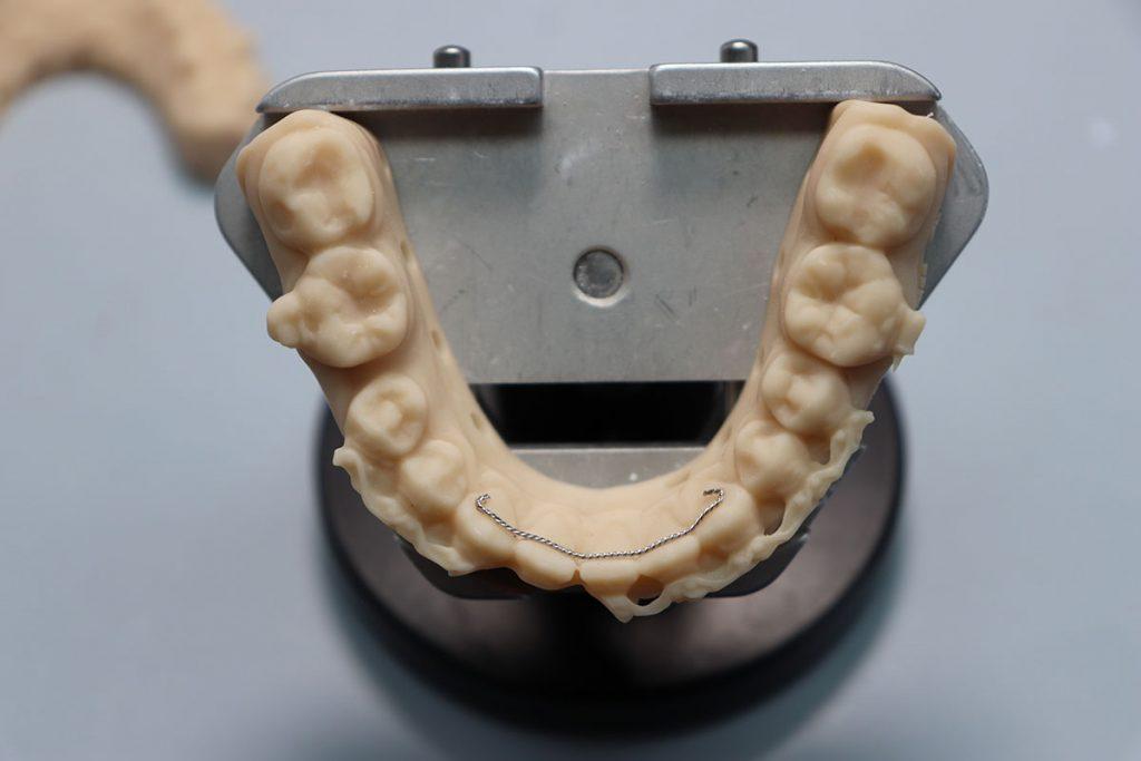 oikomiskojeet hammastekniikkaa