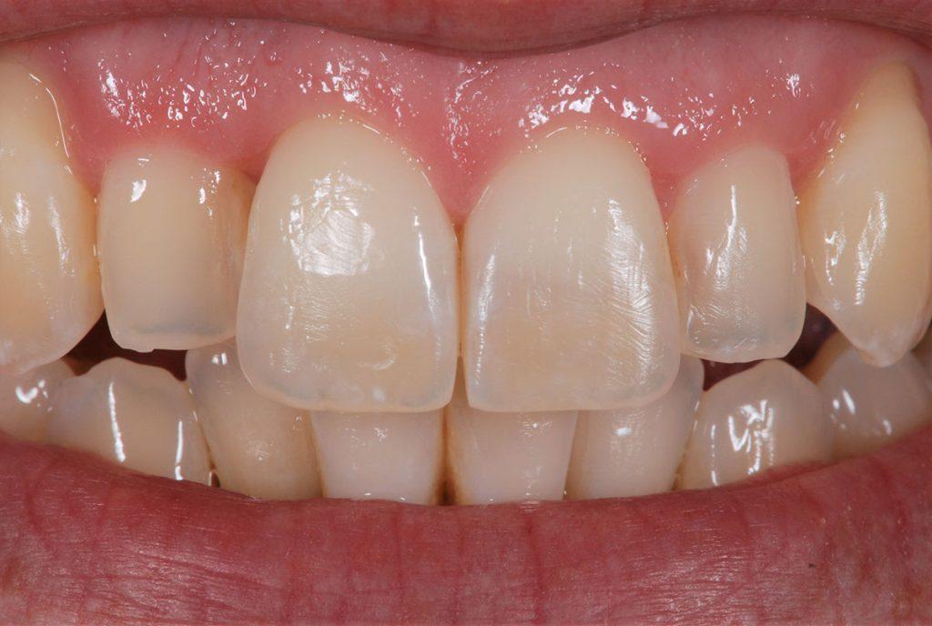 värinmääritys hammastekniikka